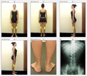 Videografia 2D, podolog warszawa, ursynów, dermapes