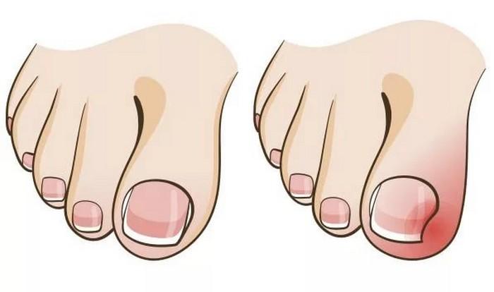 wrastający paznokieć przyczyny leczenie dermapes