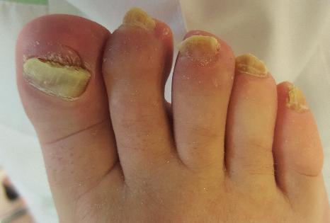 Całkowita dystroficzna grzybica paznokci